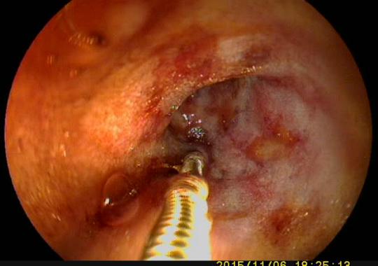 момент взятия биопсии из тонкого кишечника